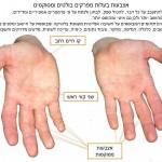 אצבעות בעלות מפרקים בולטים ומסוקסים