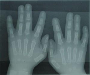 בצילום רנטגן